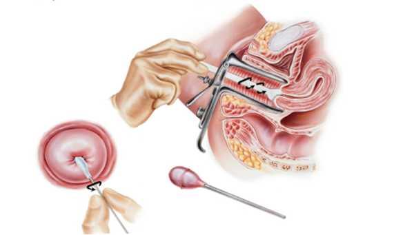 Выделение спермы вовремя дефикации